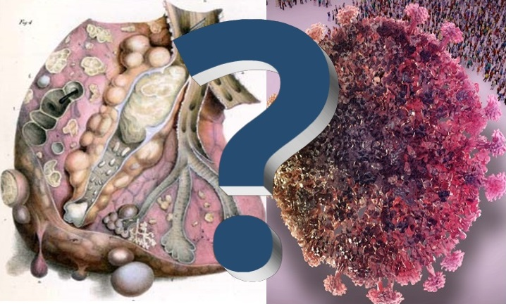 Is It COVID 19 or Pulmonary Tuberculosis?
